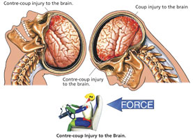 brain injury without direct head trauma