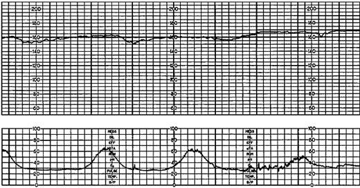 Fetal heart tracing with loss of beat to beat variability.